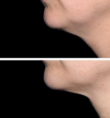 One treatment of CoolMini for the chin