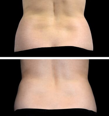 1 CoolSculpting for the love handles