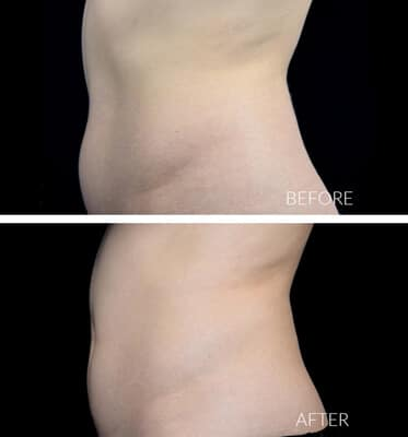 1 CoolSculpting for the abdomen & love handles