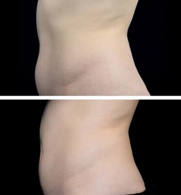 One CoolSculpting treatment for the lower abdomen