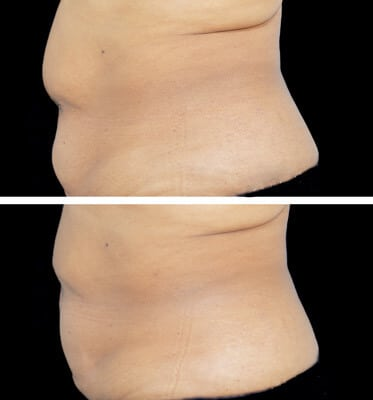One CoolSculpting treatment for the abdomen areas