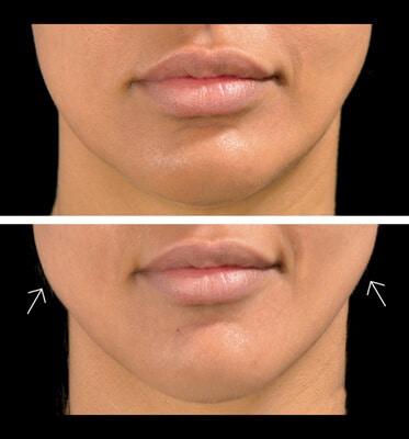 Jaw Fillers