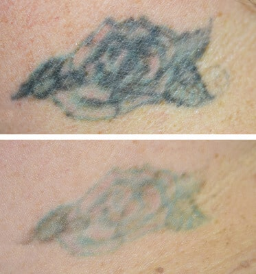 2 Sessions of Tattoo Removal