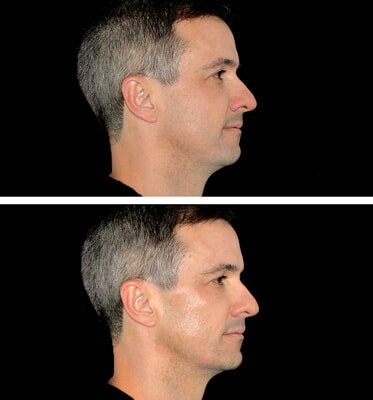 Chin & Jaw Fillers