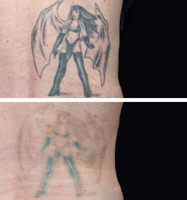 4 Treatments of Tattoo Removal