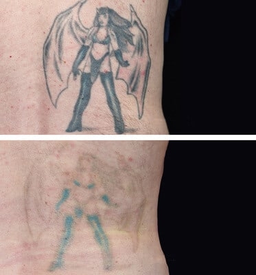 4 Sessions of Tattoo Removal