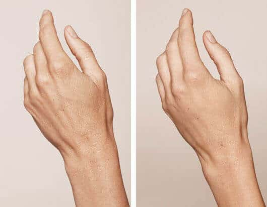 Hand Rejuvenation To Reduce The Signs Of Aging Rated 1