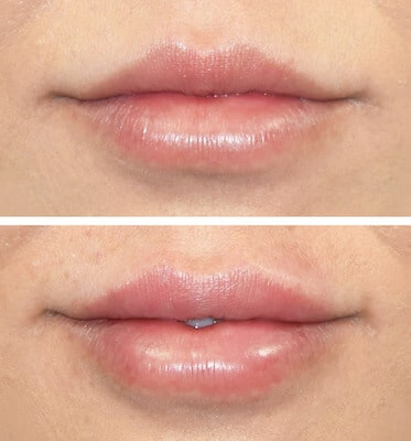 Half Syringe of Juvederm by Nurse Practitioner Samantha