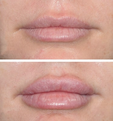Full Syringe of Juvederm