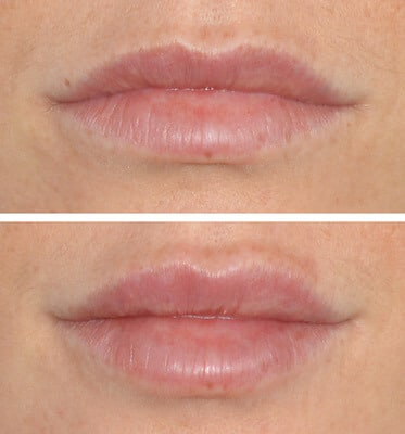 One Syringe of Juvederm by Nurse Lorrie