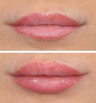 One Syringe of Juvederm by Nurse Practitioner Samantha