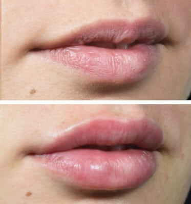 Lip Fillers for Natural Looking Volume and Shape - Rated #1 in LA