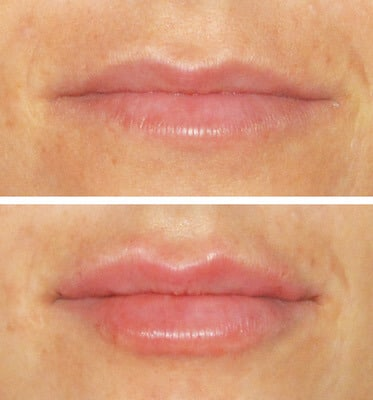 One Syringe of Juvederm Ultra by Nurse Lorrie