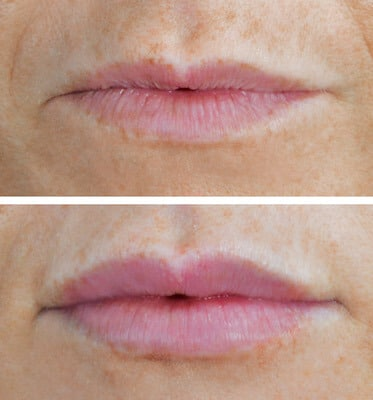 One Syringe of Juvederm by Nurse Practitioner Laura