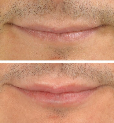 Men's Lip by Nurse Lorrie (1 Syringe Juvederm)