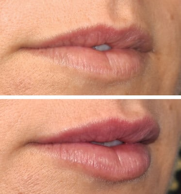 One Syringe of Juvederm by Nurse Mary