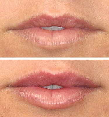 One Syringe of Juvederm by Nurse Hip