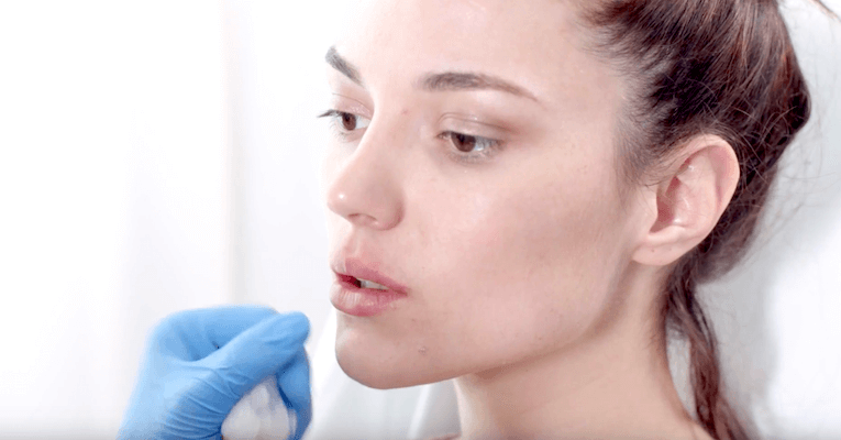 Lip Fillers for Natural Looking Volume and Shape - Rated #1